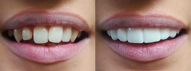 studi-dentistici-dens-marco-de-angelis-odotoiatria-chirurgia-ortodonzia-faccette-dentali-milano-1