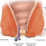 Migliore pomata per emorroidi esterne: quale scegliere per ridurre il disagio